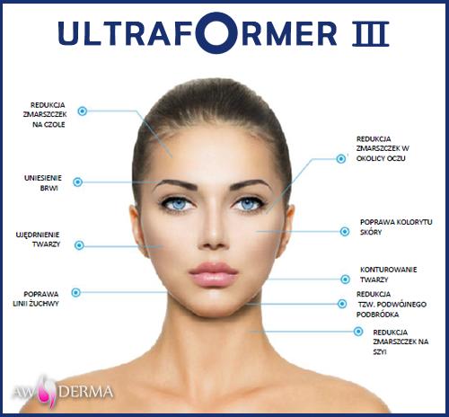 ultraformer III Wrocław